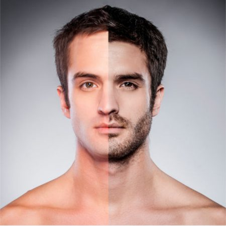 Facial Hair Restoration in New Jersey