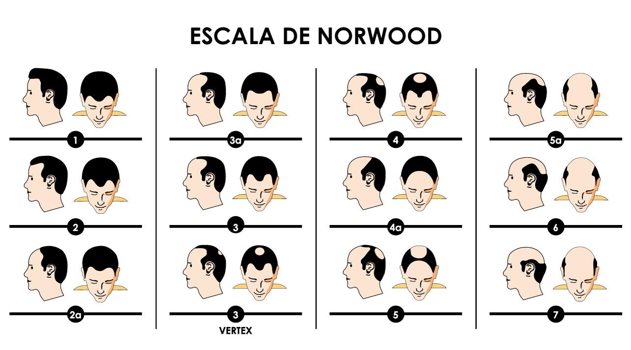 Escala de Norwood