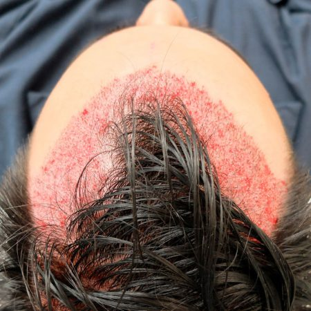 completed-FUE-surgery-of-2593-grafts-hair-transplant-timeline