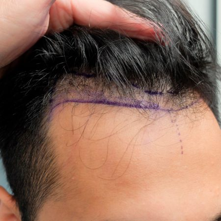 hair-transplant-timeline-before-photo-front-hairline