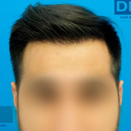 hairline-143-days-after-FUE-hair-restoration-surgery