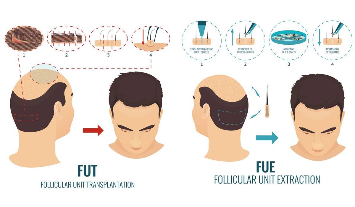 Diferencia entre el trasplante de cabello FUE & FUT